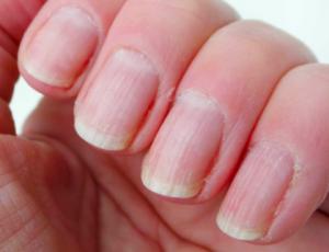 het nut van nagelverzorging